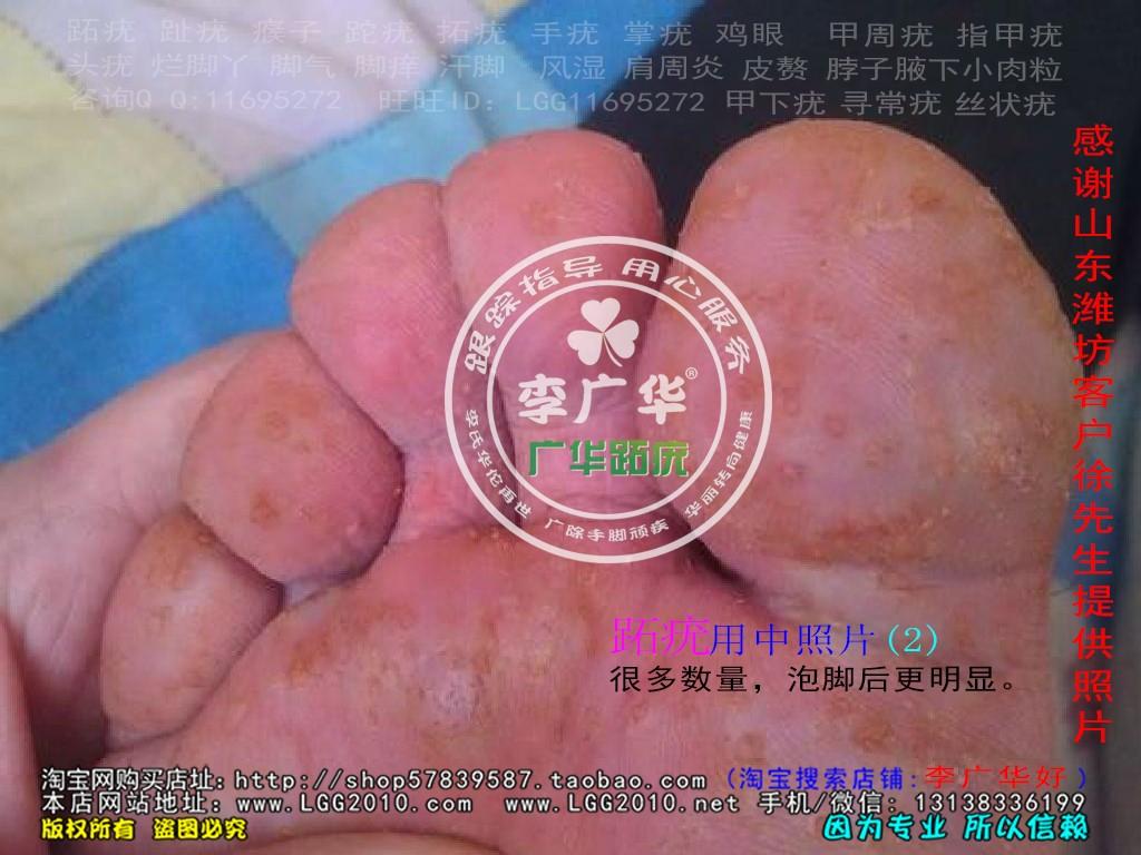 山东省潍坊市徐先生脚底长满了很多硬鸡眼是病毒感染的跖疣是不能贴鸡眼膏的刺激了会增多用中2
