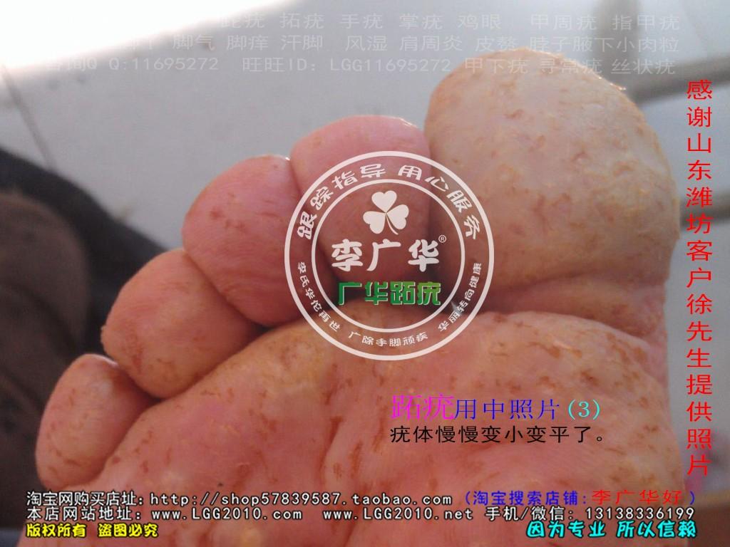 山东省潍坊市徐先生脚底长满了很多硬鸡眼是病毒感染的跖疣是不能贴鸡眼膏的刺激了会增多用中3