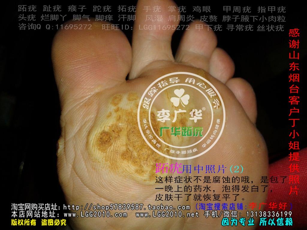 山东省烟台市丁小姐脚趾长满了很多硬鸡眼趾疣跖疣是会传染了哦用中2