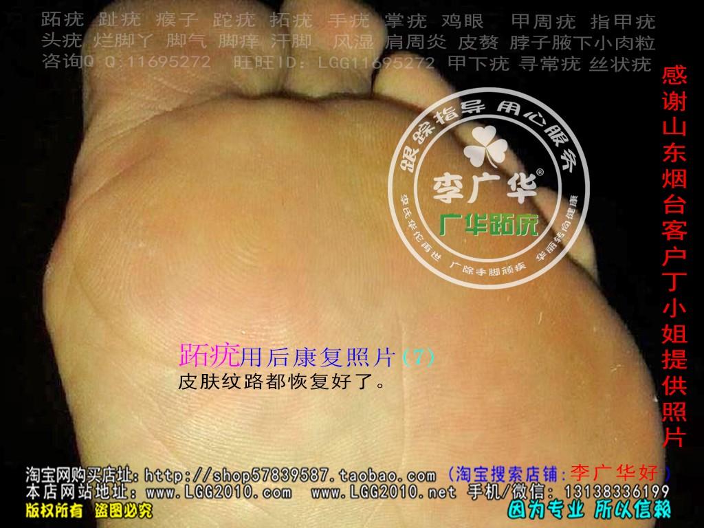 山东省烟台市丁小姐脚趾长满了很多硬鸡眼趾疣跖疣是会传染了哦用中康复7