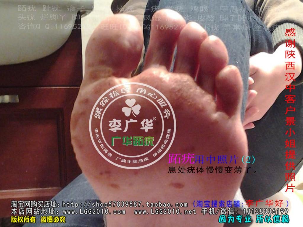 陕西省汉中市景小姐脚趾长满了很多硬鸡眼趾疣跖疣怎么治疗呢用前2