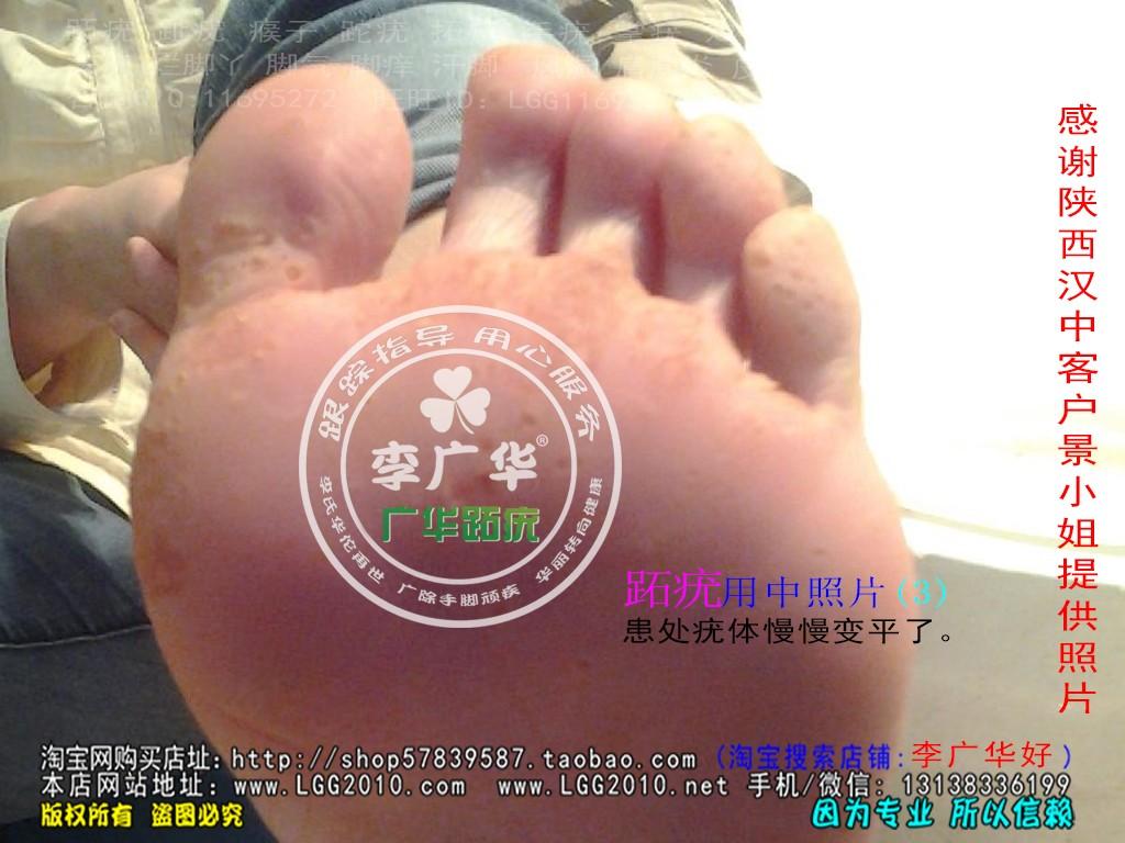 陕西省汉中市景小姐脚趾长满了很多硬鸡眼趾疣跖疣怎么治疗呢用前3