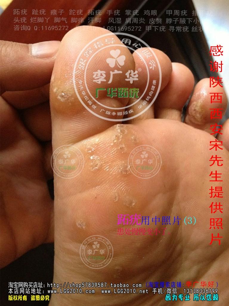 陕西省西安市宋先生脚底长满跖疣刺瘊肉刺用李广华跖尤产品镶嵌式拓疣很多硬鸡眼3