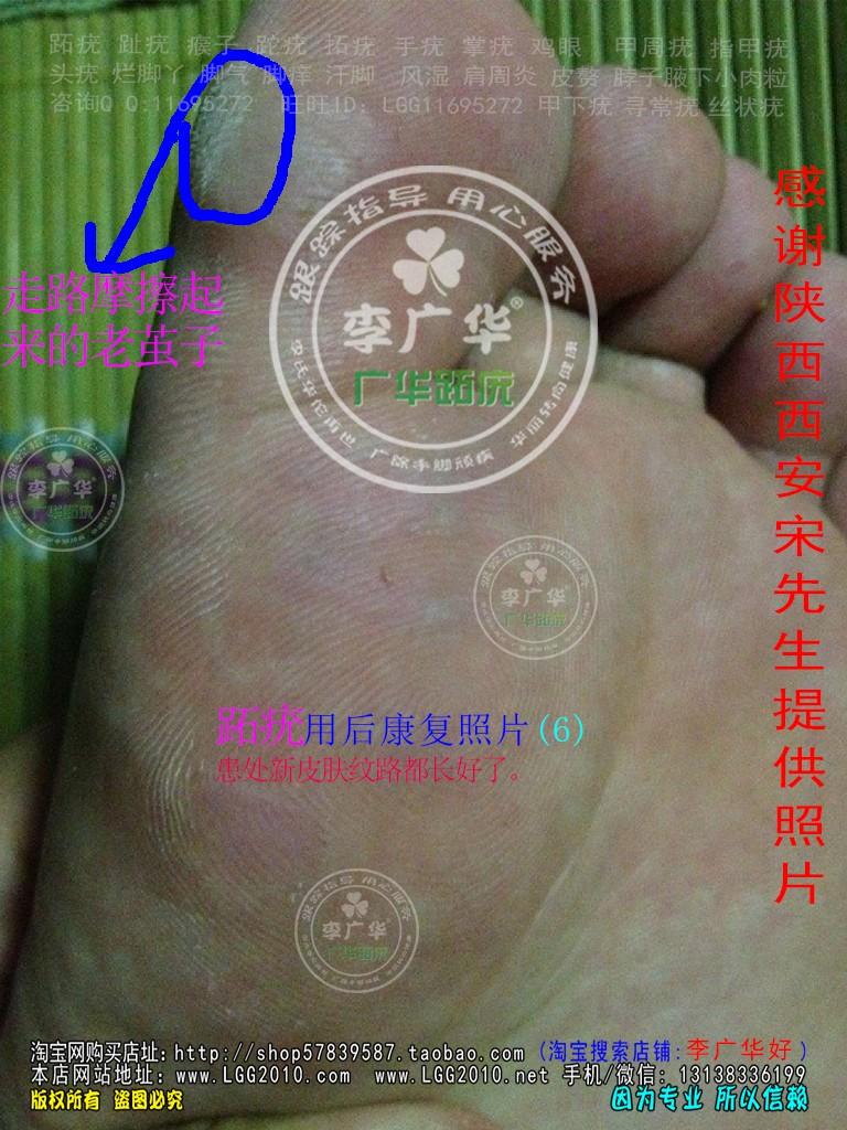 陕西省西安市宋先生脚底长满跖疣刺瘊肉刺用李广华跖尤产品镶嵌式拓疣很多硬鸡眼6