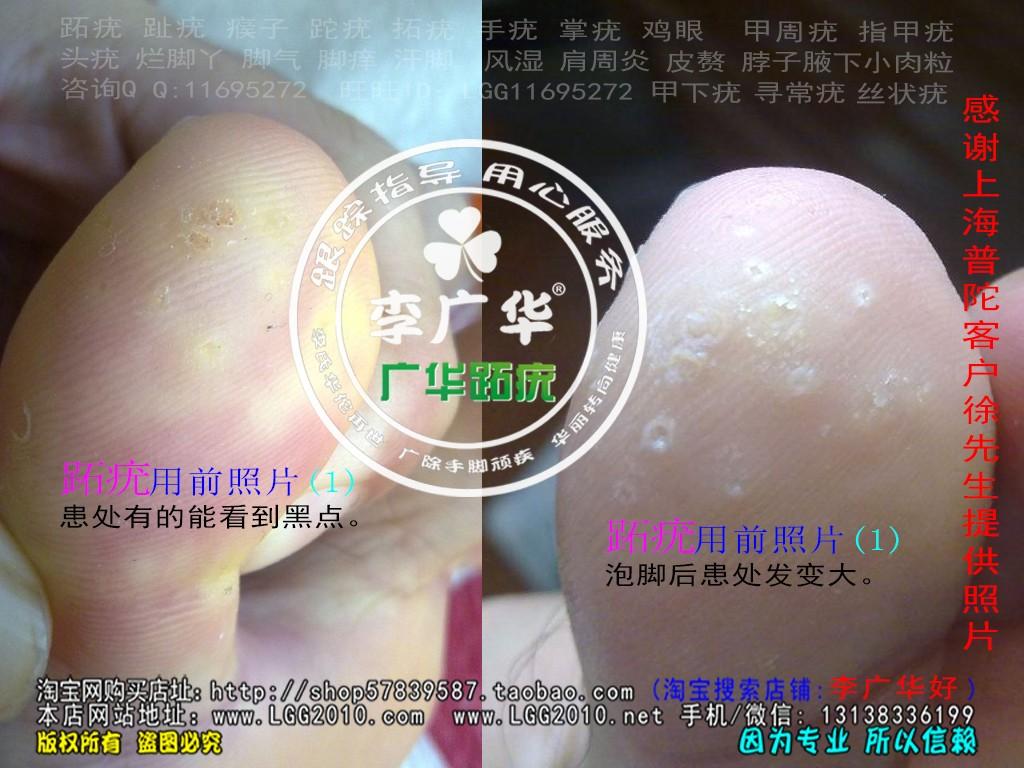 上海市普陀区徐先生脚大拇指趾长了几个硬鸡眼趾疣跖疣最快的治疗方法用前1