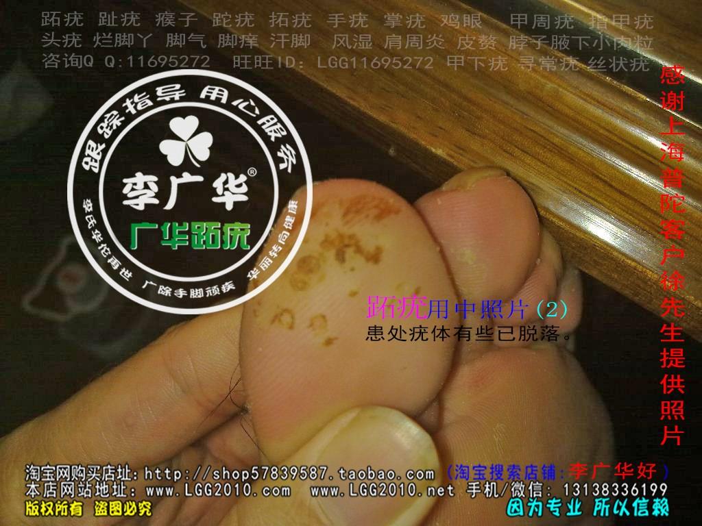 上海市普陀区徐先生脚大拇指趾长了几个硬鸡眼趾疣跖疣最快的治疗方法用前2
