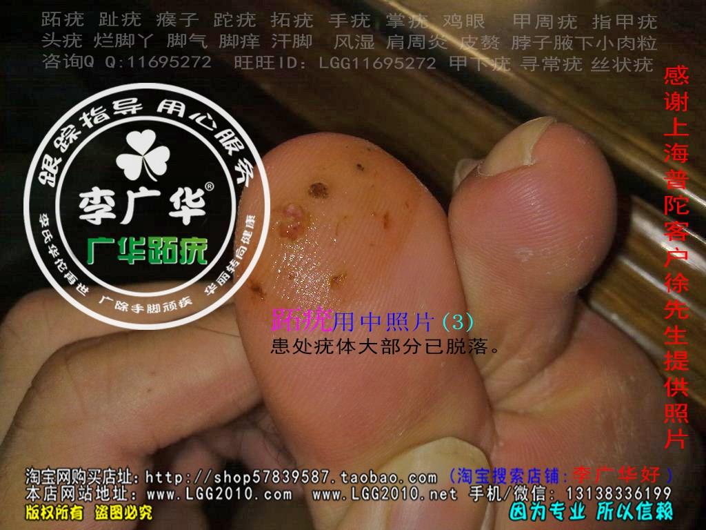 上海市普陀区徐先生脚大拇指趾长了几个硬鸡眼趾疣跖疣最快的治疗方法用前3
