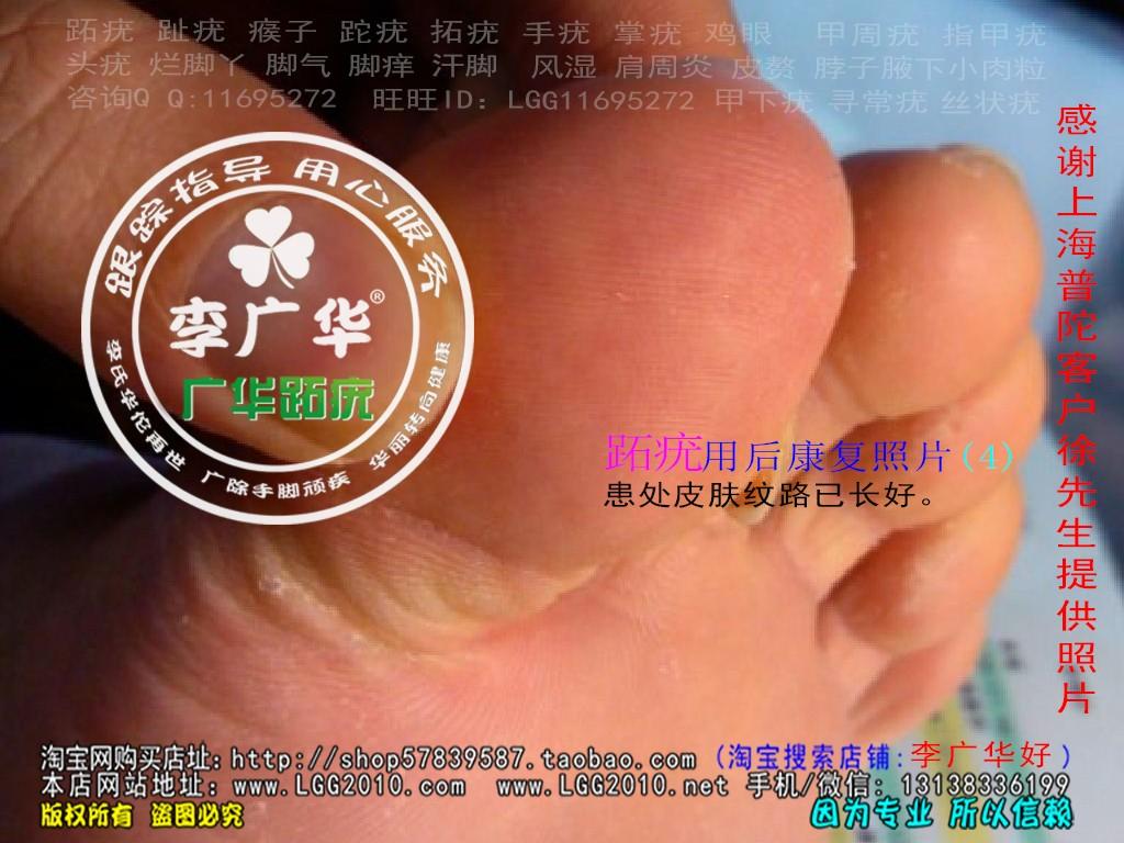 上海市普陀区徐先生脚大拇指趾长了几个硬鸡眼趾疣跖疣最快的治疗方法用前4