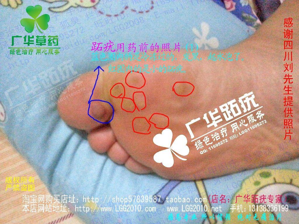 四川广华跖疣趾疣很多水泡跎疣寻常疣1