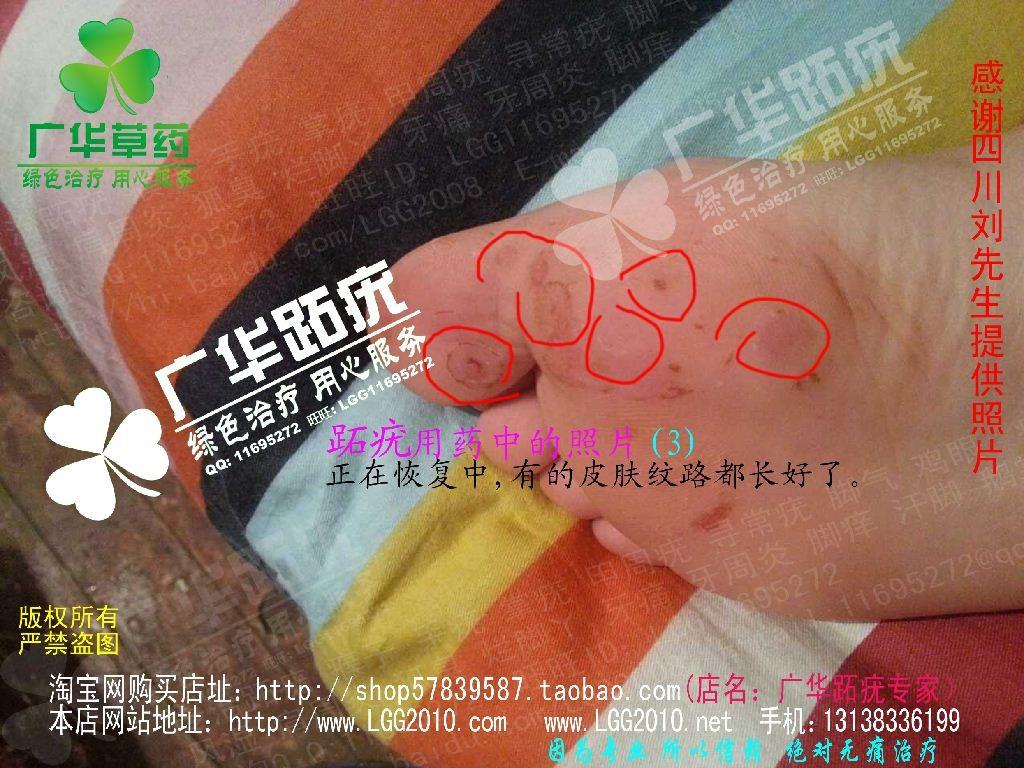 四川广华跖疣趾疣很多水泡跎疣寻常疣3