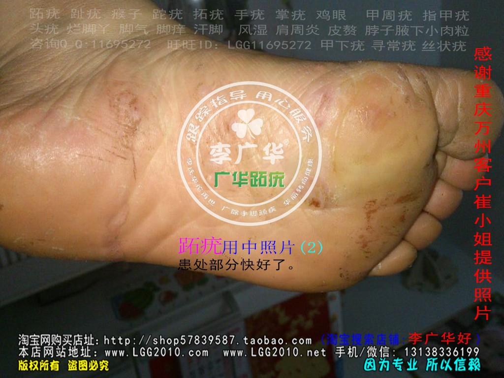 重庆市万州区崔小姐脚趾长满了很多硬鸡眼趾疣寻常疣跖疣最快康复方法用前2
