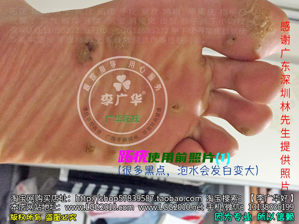 广东深圳林先生脚底很多鸡眼老茧脚垫镶嵌式群发型跖疣血泡刺肉刺1