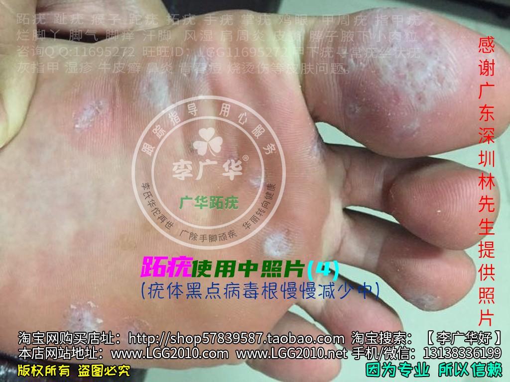 广东深圳林先生脚底很多鸡眼老茧脚垫镶嵌式群发型跖疣血泡刺肉刺4