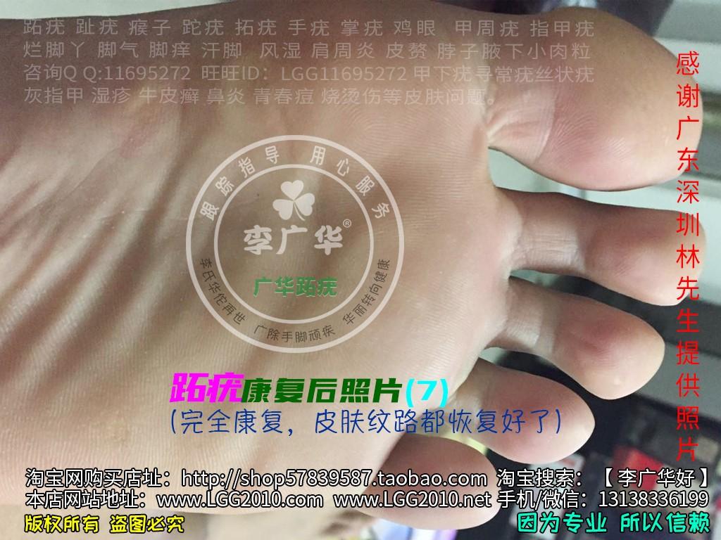 广东深圳林先生脚底很多鸡眼老茧脚垫镶嵌式群发型跖疣血泡刺肉刺7