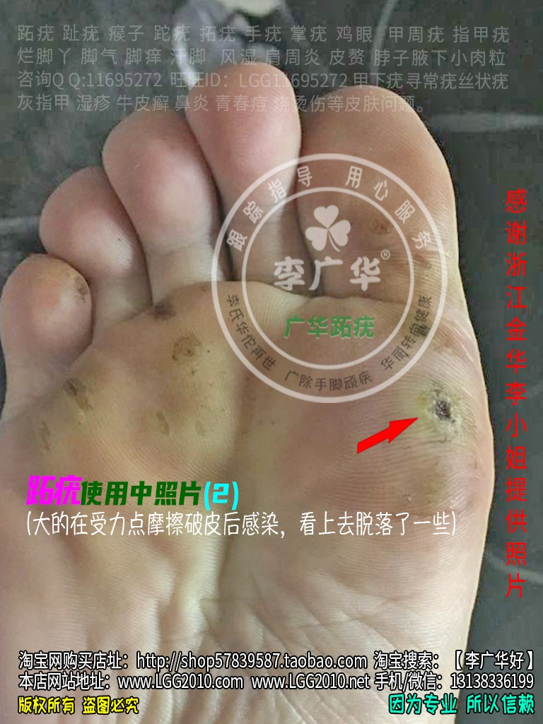 浙江金华李小姐脚底老茧脚垫镶嵌式跖疣血泡刺肉刺很多鸡眼2