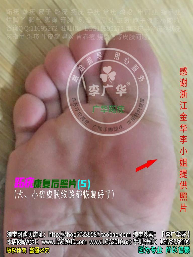 浙江金华李小姐脚底老茧脚垫镶嵌式跖疣血泡刺肉刺很多鸡眼5