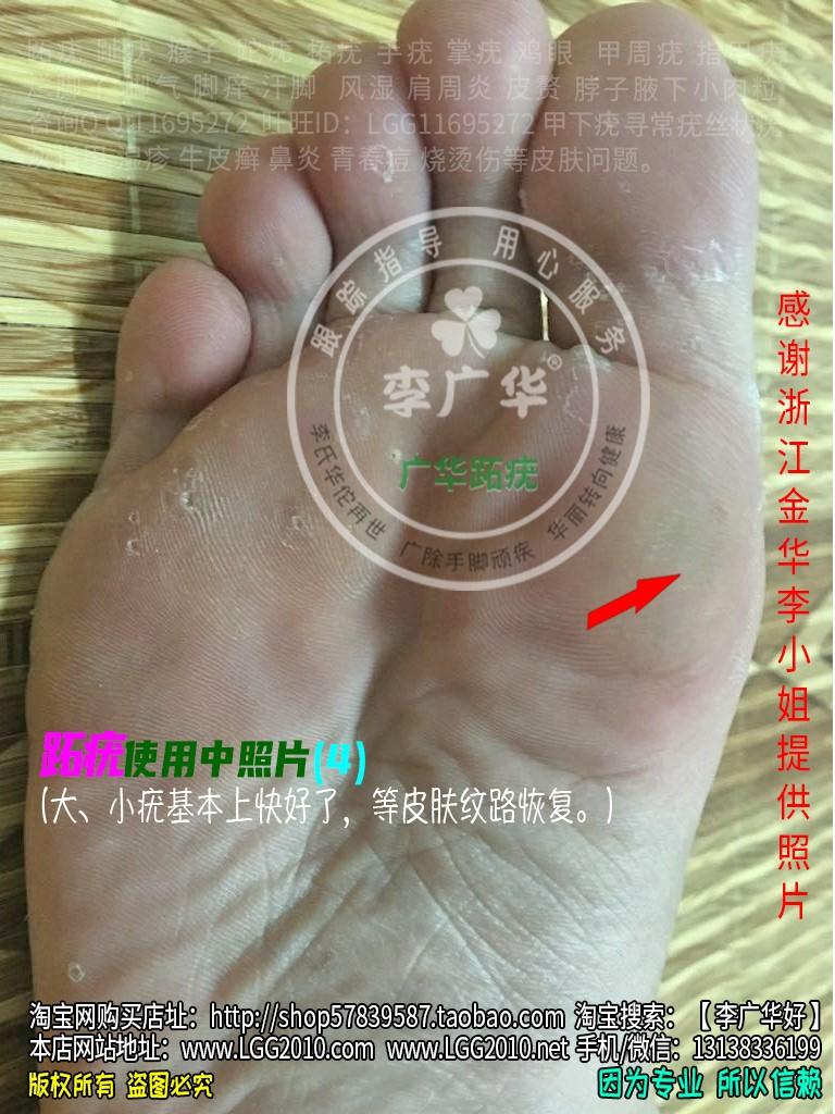 浙江金华李小姐脚底老茧脚垫镶嵌式跖疣血泡刺肉刺很多鸡眼4